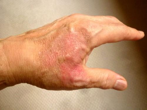 左手の火傷